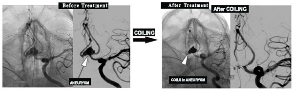 Coiling of Brain Aneurysm